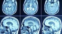 Lien confirmé entre faible niveau de vitamine D et sclérose en plaques