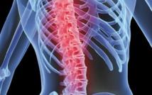 L'ostéoporose touche 30% de Marocains