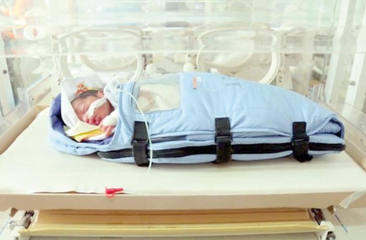 Les taux de naissances prématurées en hausse à travers le monde
