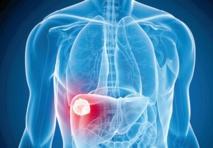 Un nouveau médicament contre l'hépatite C bientôt sur le marché