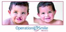 Réparation des malformations faciales au profit des enfants à Ouarzazate