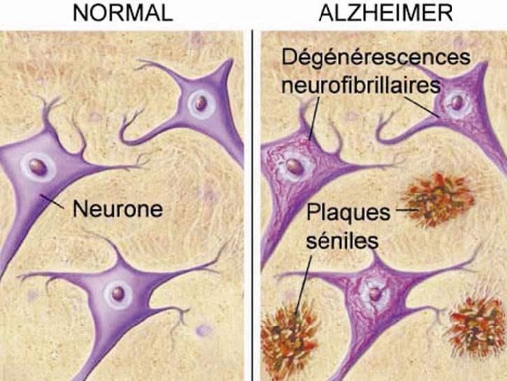 Près de 150.000 Marocains souffrent de la maladie d'Alzheimer