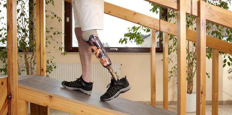Une imprimante  3D pour fabriquer les prothèses de Handicap international