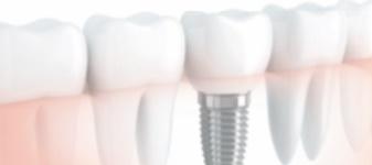 Réponses d'expert : Est-il vrai que les implants dentaires sont déconseillés aux fumeurs ?