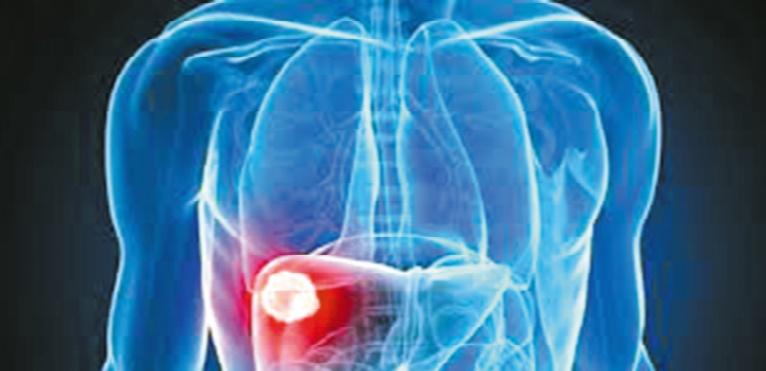 1,25 million de Marocains sont atteints par le virus de l'hépatite C et l'hépatite B
