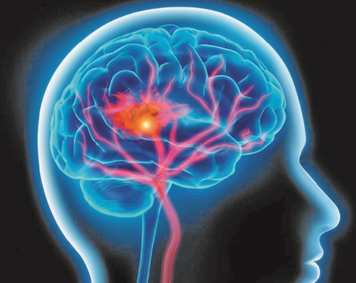 Journée mondiale de l'accident vasculaire cérébral : L'AVC un mal aussi récurrent que méconnu