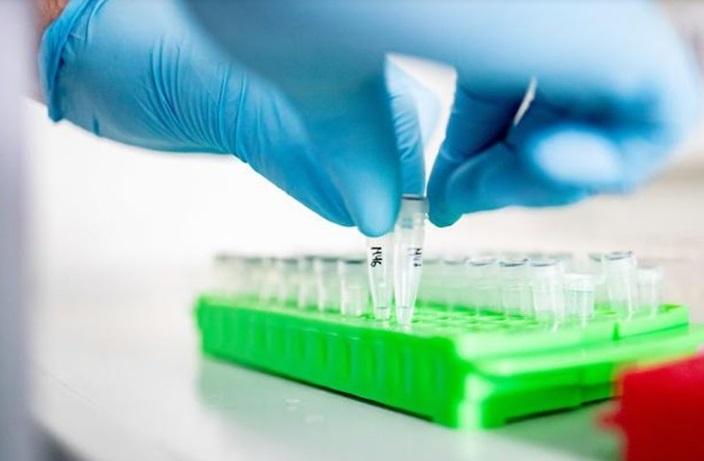 Une étude confirme l'efficacité modeste d'un antiviral contre le Covid-19