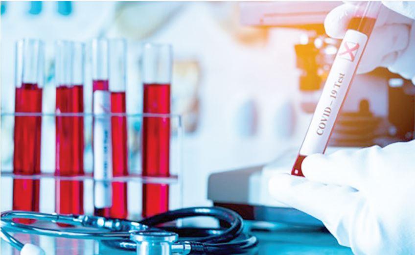 La pandémie et son cortège d'incertitudes