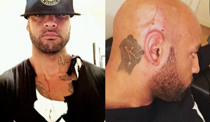 Booba blessé au crâne par Dam16