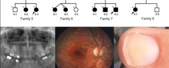 Des chercheurs marocains contribuent à la découverte d'une nouvelle maladie métabolique