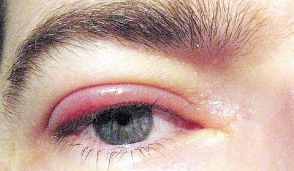 Sensibiliser les populations les plus démunies sur les maladies oculaires