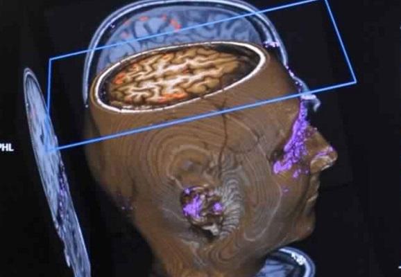 Avoir un gros cerveau ne serait pas une bonne nouvelle