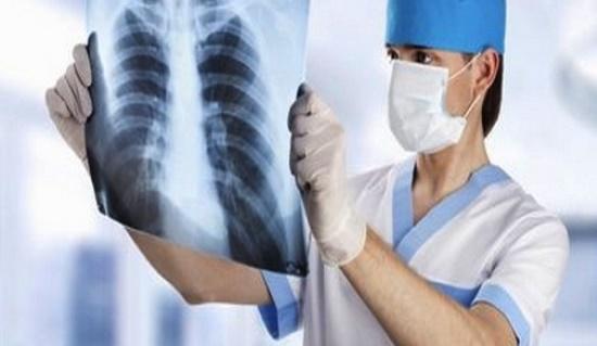"""Présentation du livre """"Le cancer broncho-pulmonaire non à petites cellules, connaissances et pratique"""""""