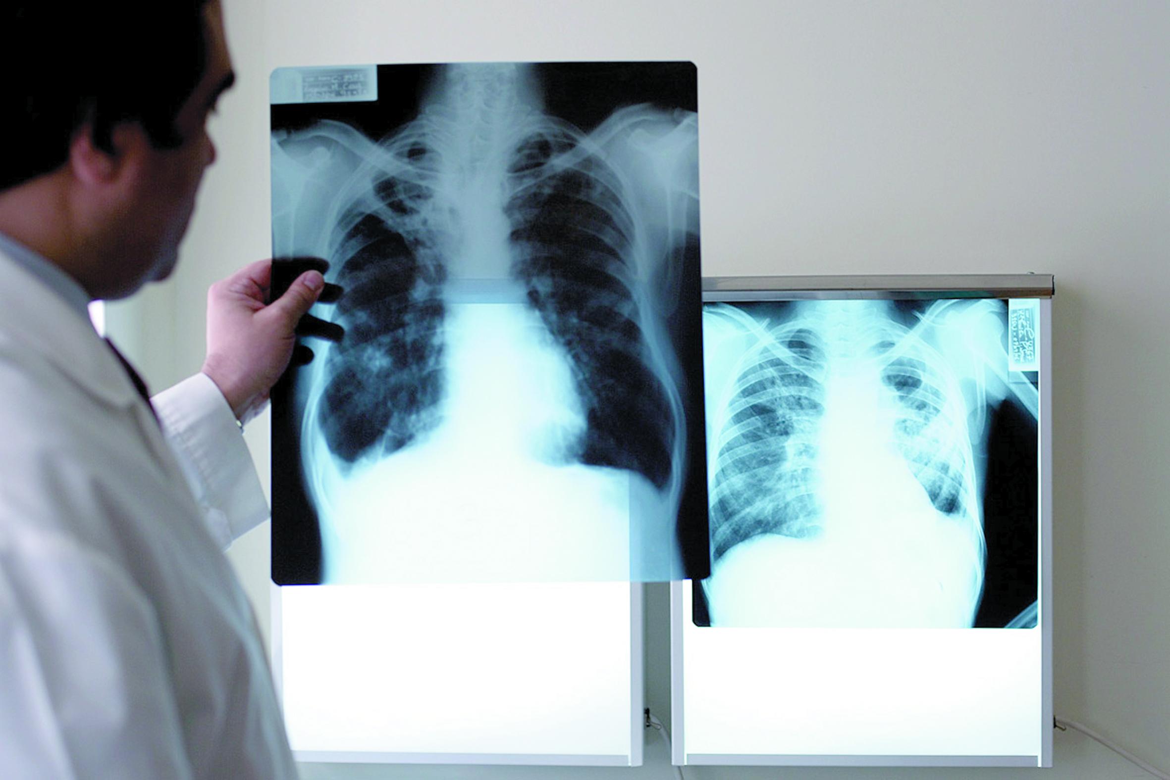 Tuberculose : Le taux d'incidence  et de rechute en baisse à Essaouira