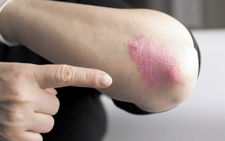 Le psoriasis, une maladie chronique de la peau qui touche 750.000 patients au Maroc
