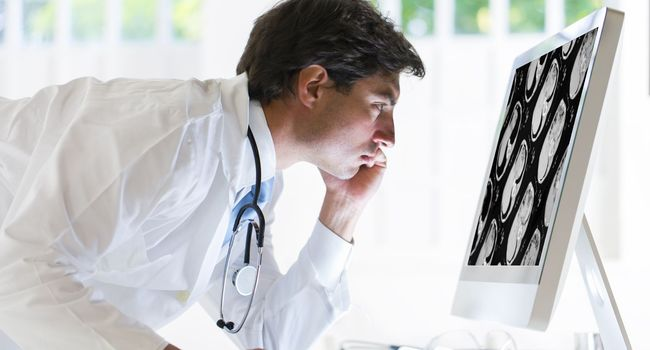 Cancer : Une nouvelle étude clinique confirme l'efficacité de l'immunothérapie