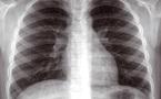 Plus de 25.000 cas déclarés en 2008 : L'éradication de la tuberculose n'est pas pour demain