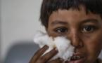 Après l'EI et les bombes, la province syrienne de Raqa assaillie par la leishmaniose
