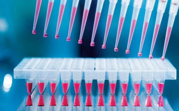 Les avis du Conseil des pharmaciens biologistes et de la chambre syndicale des biologistes