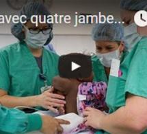Née avec quatre jambes et deux colonnes vertébrales, Dominique aura une vie normale