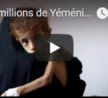Des millions de Yéménites face à la famine (ONU)