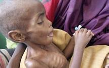 Corne de l'Afrique : L'ONU demande une intervention d'urgence